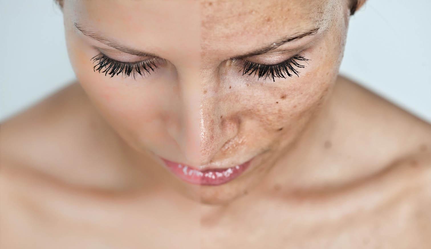 Ровный тон кожи — лазерное фотоомоложение